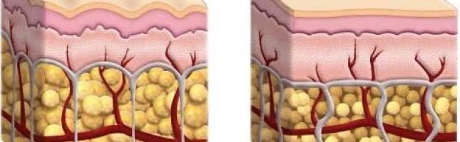 l-ultima-sfida-alla-cellulite