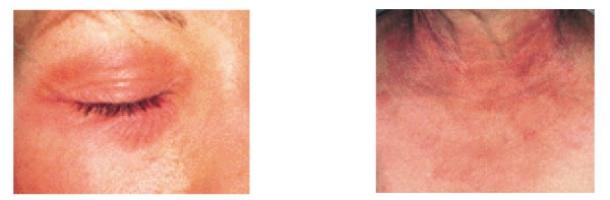 dermatite-allergica-da-contatto-o-dermatite-irritativa
