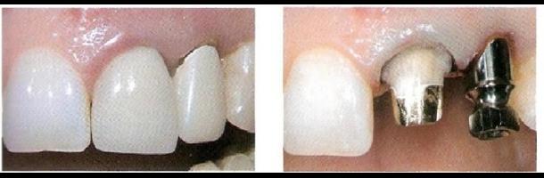 il-risultato-della-chirurgia-implantare