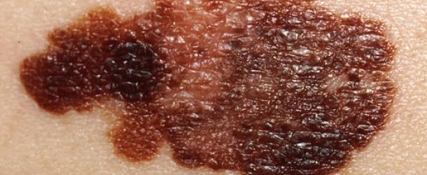 importante-studio-sul-melanoma-in-italia