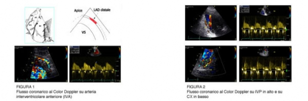 la-valutazione-della-riserva-di-flusso-coronarico-con-ecocardiografia-transtoracica-metodologia